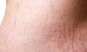 immature stretch marks